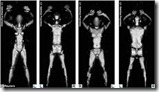 BODY-SCANNER-A-RETRODIFFUSIONE-DI-RAGGI-X